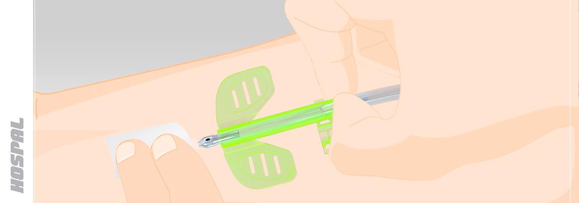 vidéo imagerie médicale